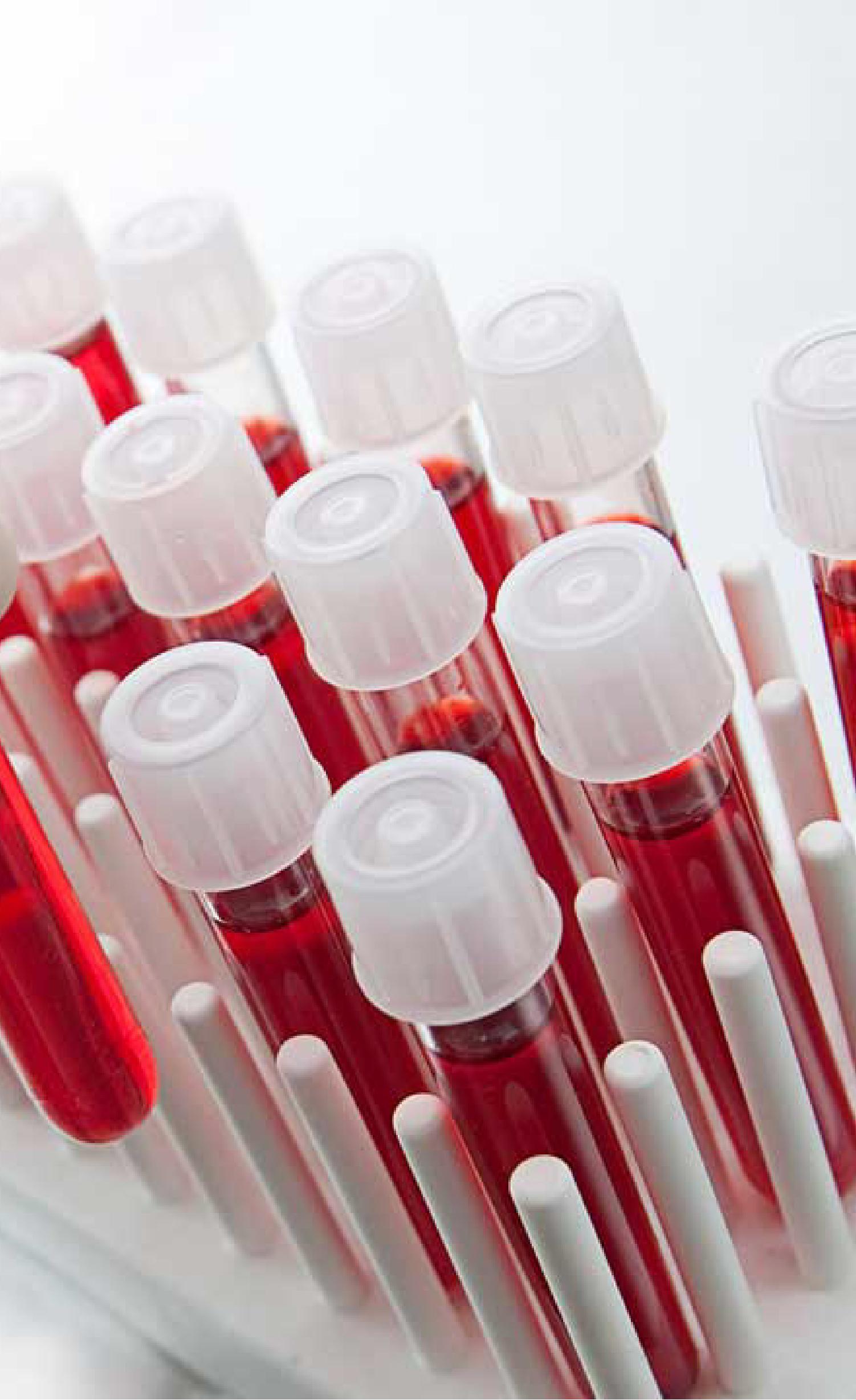 muestras de sangre